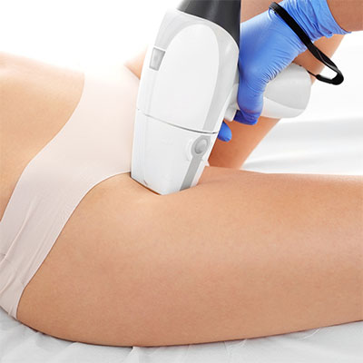Laser Hair Removal (3 sessions for $33*)