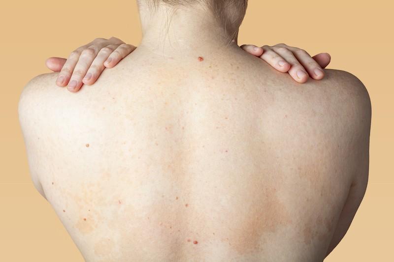 OPT Back Acne Treatment Singapore